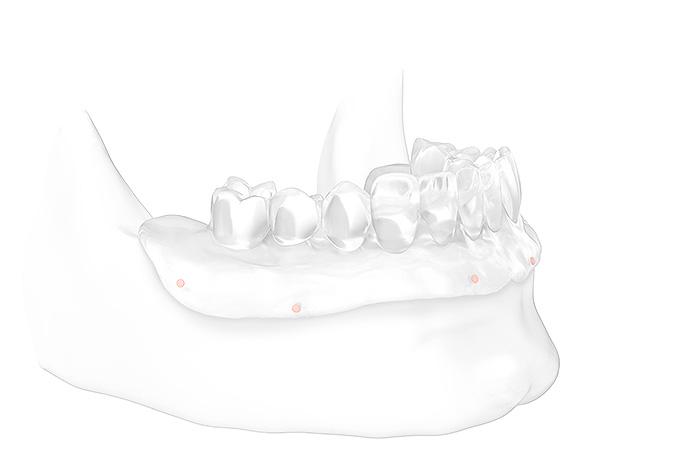 All-on-4® Feste Zähne auf 4 Implantaten: Modell Kiefer