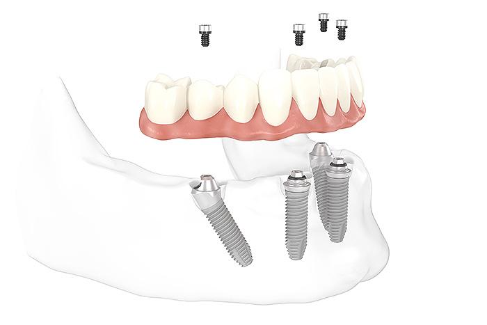 All-on-4® Feste Zähne auf 4 Implantaten
